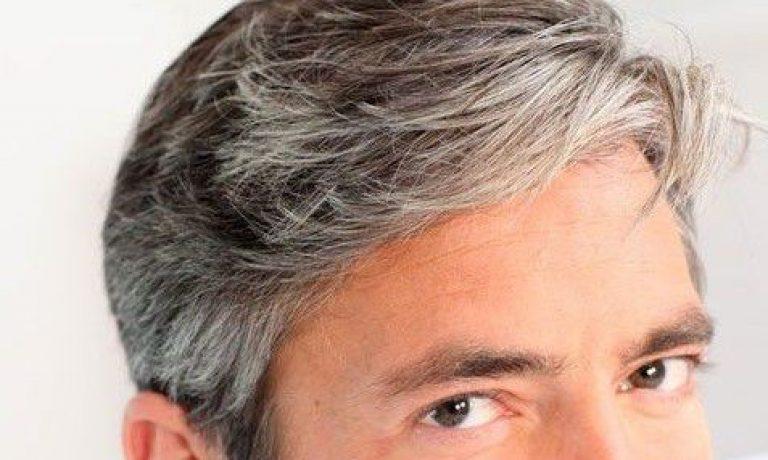 چرا افراد دچار سفیدی زودرس مو میشوند؟